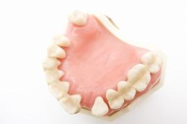 失った歯をどんな入れ歯やブリッジで埋め合わせするかは、院長が患者さまにその歯の状況や対策の選択肢などをご説明したうえで、相談して決定します